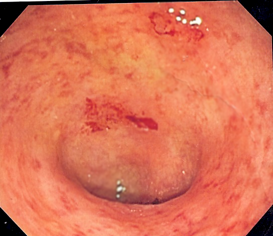Poo transplant effective treatment for chronic bowel condition