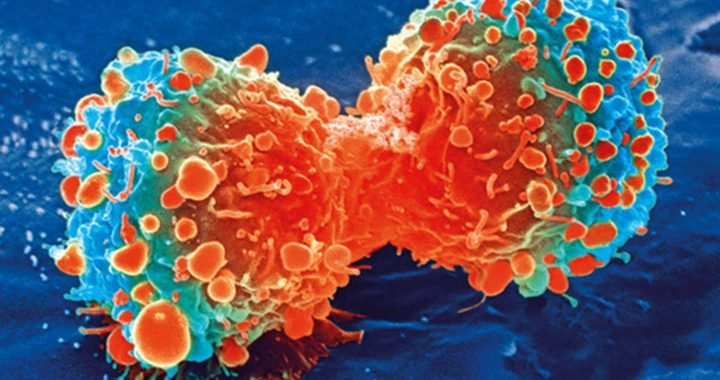 Thermal stress elicits genomic changes that can make cancer cells resistant to chemotherapy