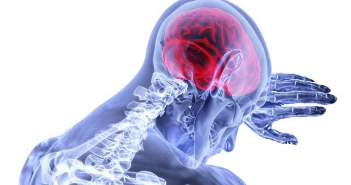 New study highlights 'alarmingly high' rate of visual problems in stroke survivors