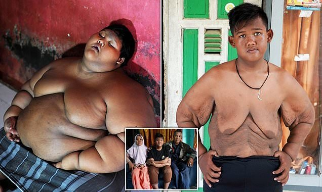 'World's fattest child' lost more than half his body weight