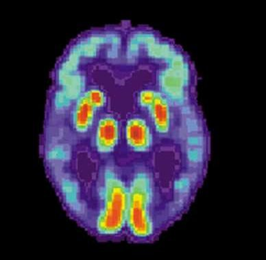 Synthetic peptide can inhibit toxicity, aggregation of protein in Alzheimer's disease