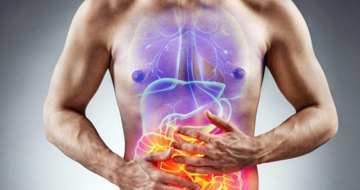Food additive E171 destroyed our intestinal flora and promotes inflammation of also intestinal