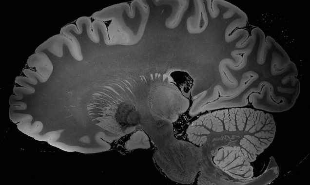Four-day MRI produces the 'most detailed scan of the human brain ever'