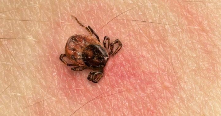 Tick bite with consequences
