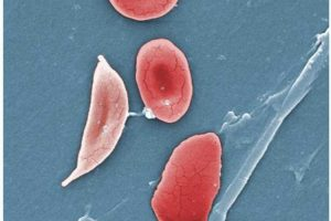 Computer model could help test new sickle cell drugs