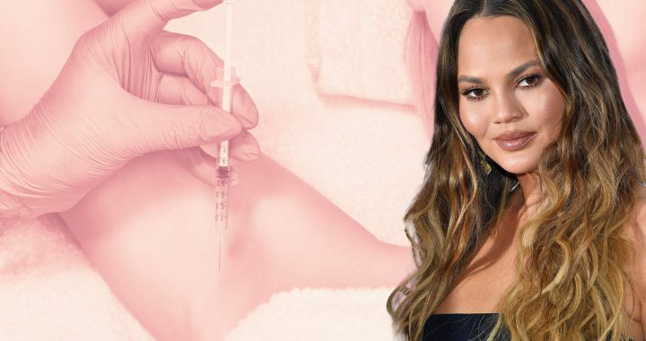 Chrissy Teigen Just Showed Herself Getting Botox Injections in Her Armpits…But Why?