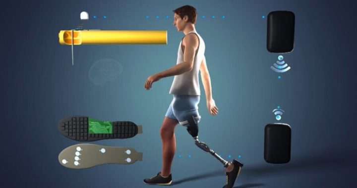 Feeling legs again improves amputees' health