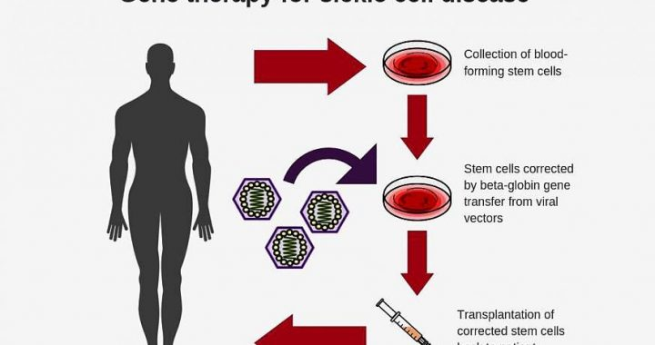 Researchers create new viral vector for improved gene therapy in sickle cell disease