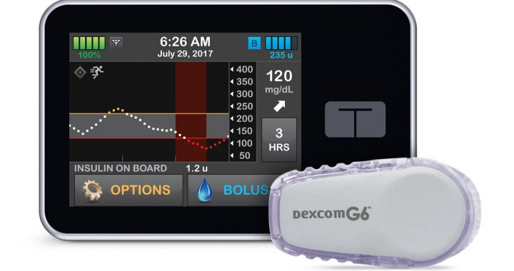 Artificial pancreas system better controls blood glucose levels than current technology