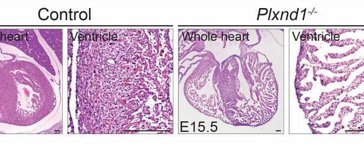 Faulty signalling pathway linked to congenital heart condition
