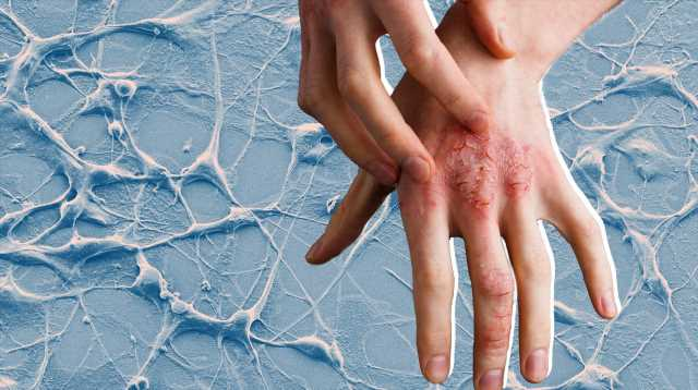 Why It's So Important to Know Your Cancer Risk if You Have Psoriasis