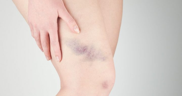 What does it mean when you bruise easily?