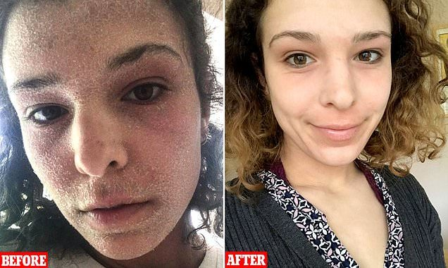 Shocking before and after pictures of eczema-stricken student