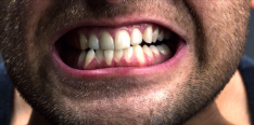 These Are the Least Annoying Ways to Stop Grinding Your Teeth