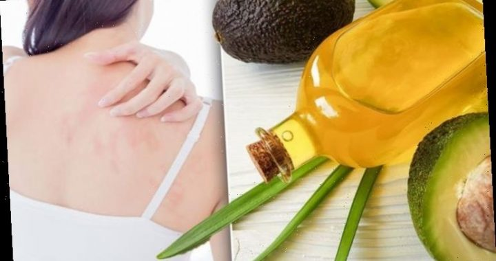 Eczema treatment – the best oil remedy for relieving your dry and itchy skin at home