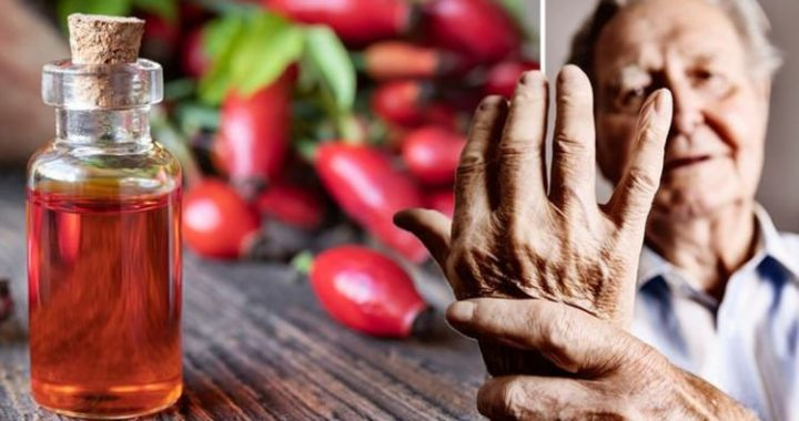 Arthritis treatment: Take this herbal extract every day to reduce pain