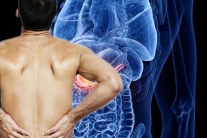 Back pain warning: It can be a sign of pancreatic cancer – how to tell