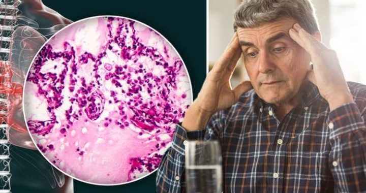 Lung cancer symptoms: Experiencing 'dysphagia' when eating is a warning sign