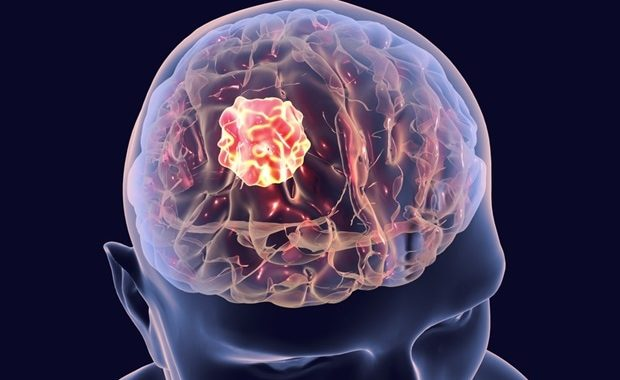 A novel approach to suppress the growth of glioblastoma cells