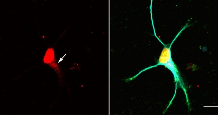 New signaling pathway in neurons