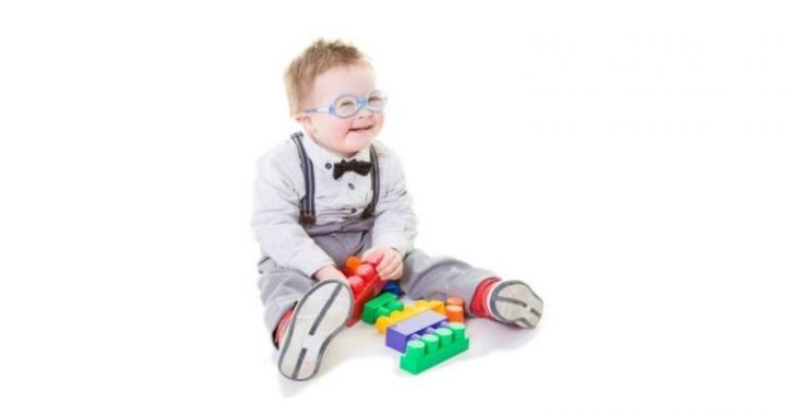 The importance of adequate health surveillance for children with Down syndrome