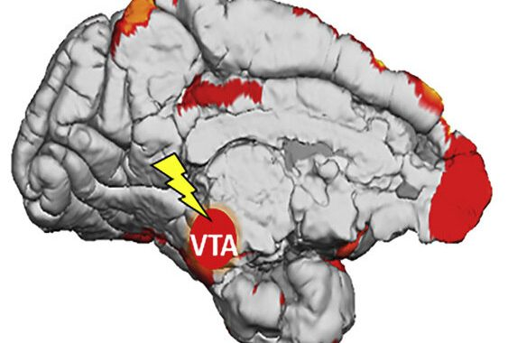 Researchers discover how the brain learns from subconscious stimuli