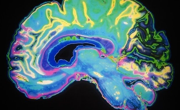 High-powered MRI detects subtle differences in the hippocampus of people with Down syndrome