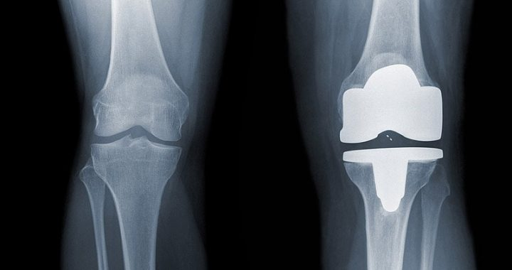 Knee Replacement: Kidney Injury Common With Antibiotic Spacers