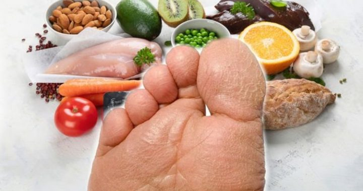 Vitamin B3 deficiency: Lacking in the vitamin could cause dry and cracked heels