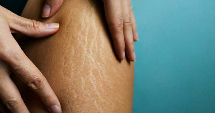 Does Bio-Oil Really Work To Reduce Stretch Marks?