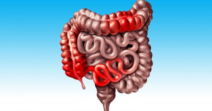 Medicare Patients See Rising Rates of IBD
