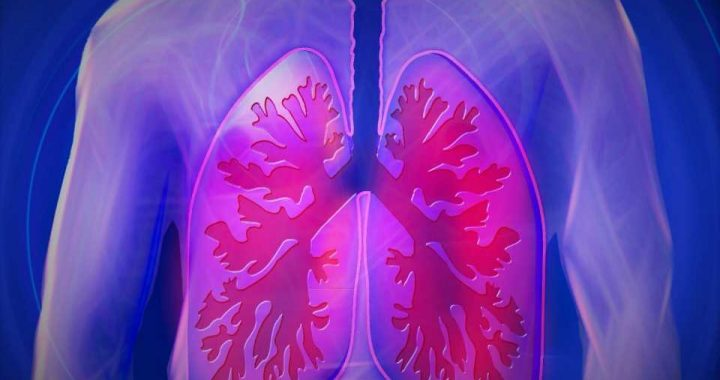 Antibodies produced in the lung can prevent respiratory infections from becoming severe