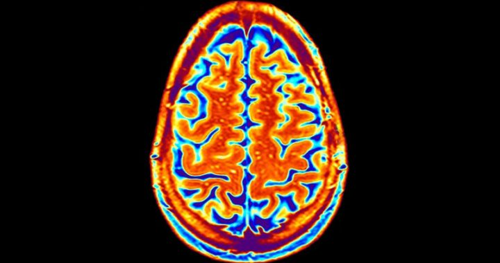 Cortical Surface Changes Tied to Movement Disorders in Schizophrenia