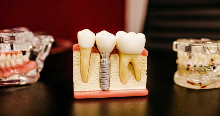 Machine-learning algorithms may help identify those at risk of tooth loss