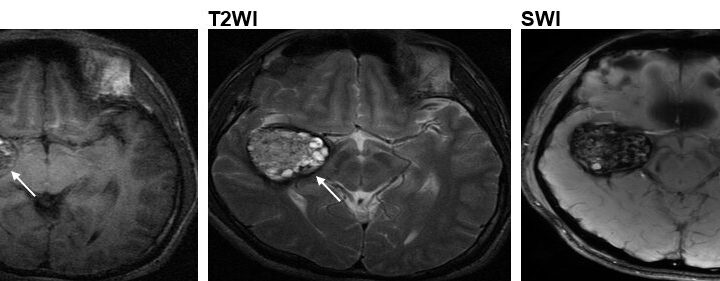 Researchers discover a new cause for the cerebral cavernous malformation