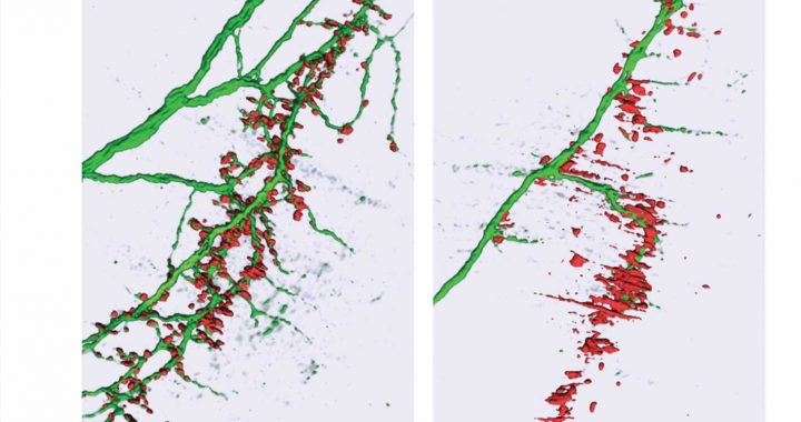 Research reveals how subtle changes in a microRNA may lead to ALS