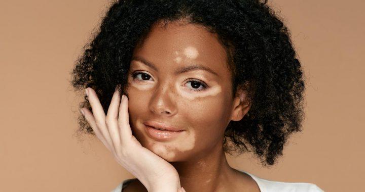 The Top 8 Ways To Treat Vitiligo Effectively